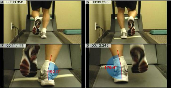 Gait analysis during CEU course for PT's that manage running athletes
